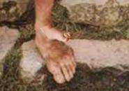 Mladočov přišroubovaný uměle na smradlavou velkou nohu...